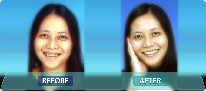 Fine Dentistry by Design Patient Photo Gallery