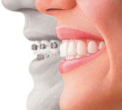 Invisalign provided by Rockeville Dentist Dr. Lisa Wang DMD, MS